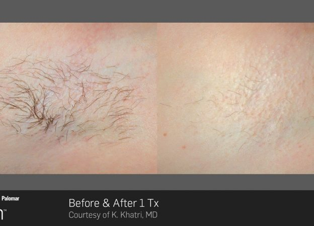 bloom-Hair-Removal-Before-&-After-4