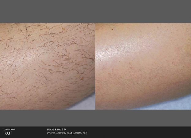 bloom-Hair-Removal-Before-&-After-Photo-2