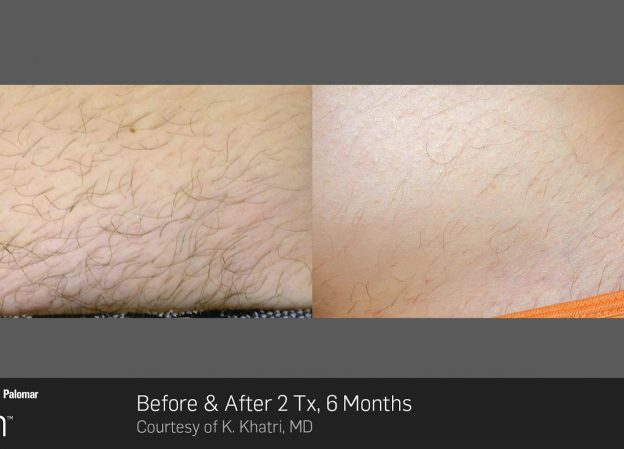 bloom-Hair-Removal-Before-&-After-Photo-7