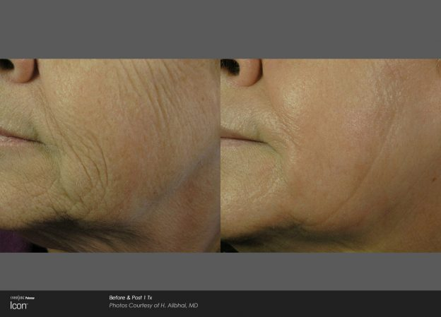 bloom-Skin-Resurfacing-Before-&-After-Photo-2