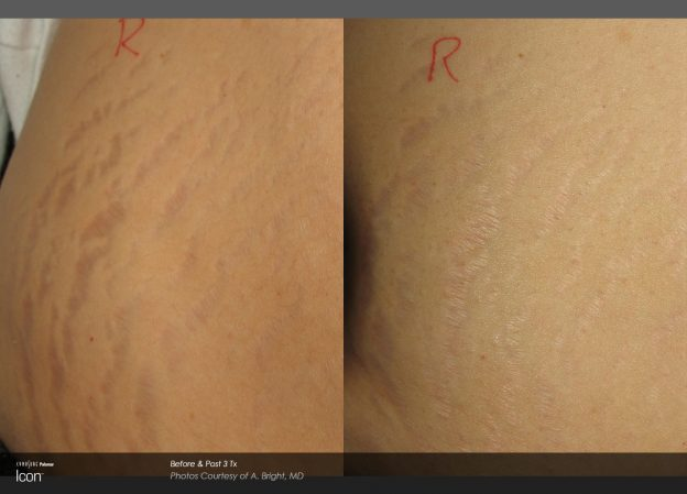 bloom-Stretch-Mark-Before-&-After-2