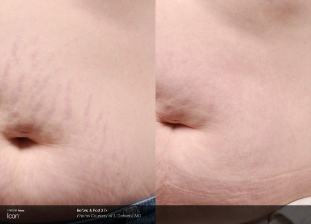 bloom-Stretch-Mark-Before-&-After-4